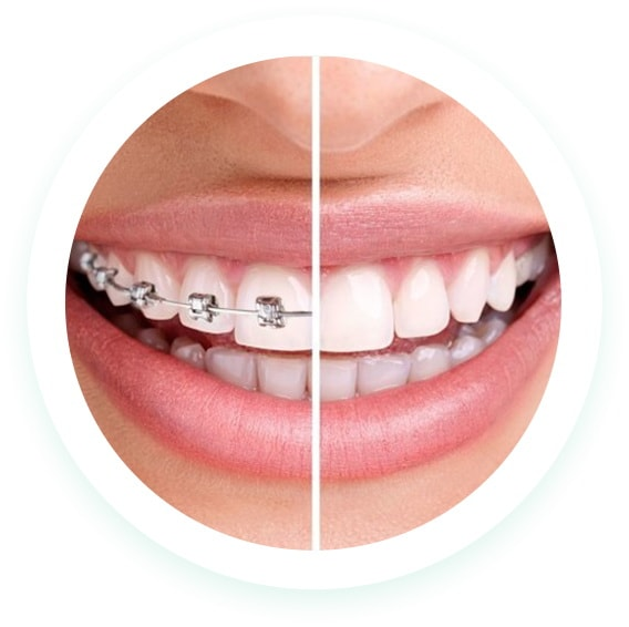 dental braces penrith