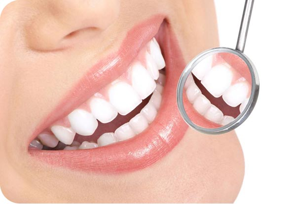 penrith tooth colored fillings