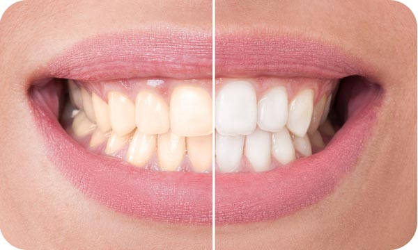 tooth whitening penrith